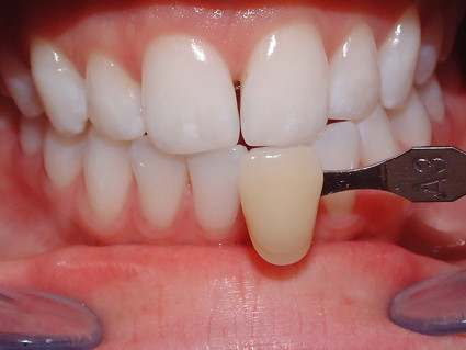 Zahnarztpraxis Dr. Jens Schwenke heißt Sie willkommen